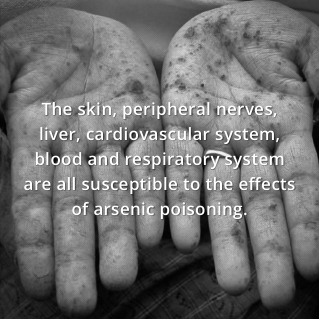 arsenic-poisoning-claims-3-638