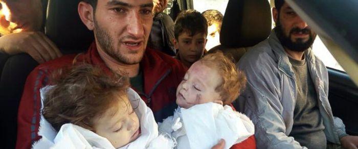 ap-syria-twins-jc-170405_12x5_992.jpg